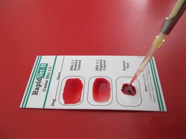 目前医院血型鉴定方法有两种玻片法和试管发,其中玻片法应用最广泛,这里简单介绍一下步骤: (1)护士将标A型与B型血清各一滴,滴在玻片的两侧,分别标A与B。 (2)用75%酒精棉球消毒左手无名指端,用消毒采血针刺破皮肤。滴1滴血于盛有 lml生理盐水的小试管中,混均制成红细胞悬液(浓度约5%)。 (3)用滴管吸取红细胞悬液,分别滴一滴于玻片两侧的血清上,用两支牙签分别混匀(注意严防两种血清接触)。 (4)15分钟后用肉眼观察有无凝集现象,判定血型。 从互联网上医生的反馈信息中了解到,血型鉴定过程根据实际情